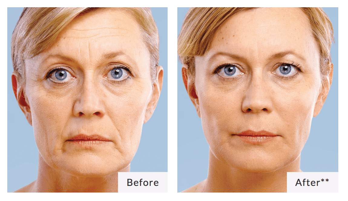 Dermal Fillers - Coast Medical: Family Walk-In Clinic